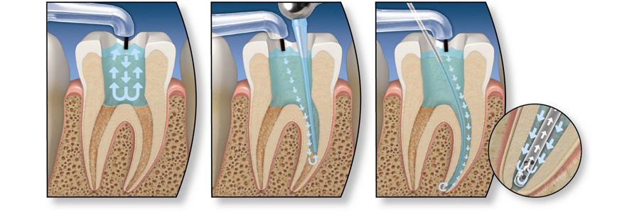 endodonciaesquema