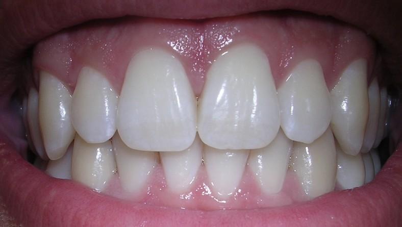 ¿Por qué amarillean los dientes a pesar de cepillarlos a diario?